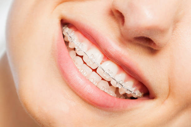 Traditional Braces for Adults